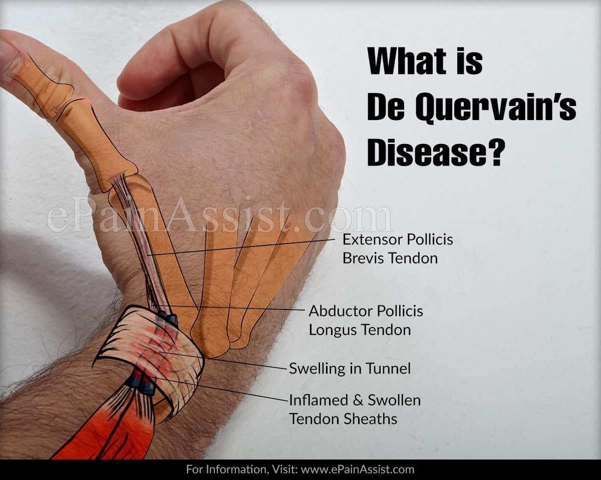 What is De Quervain's Disease?