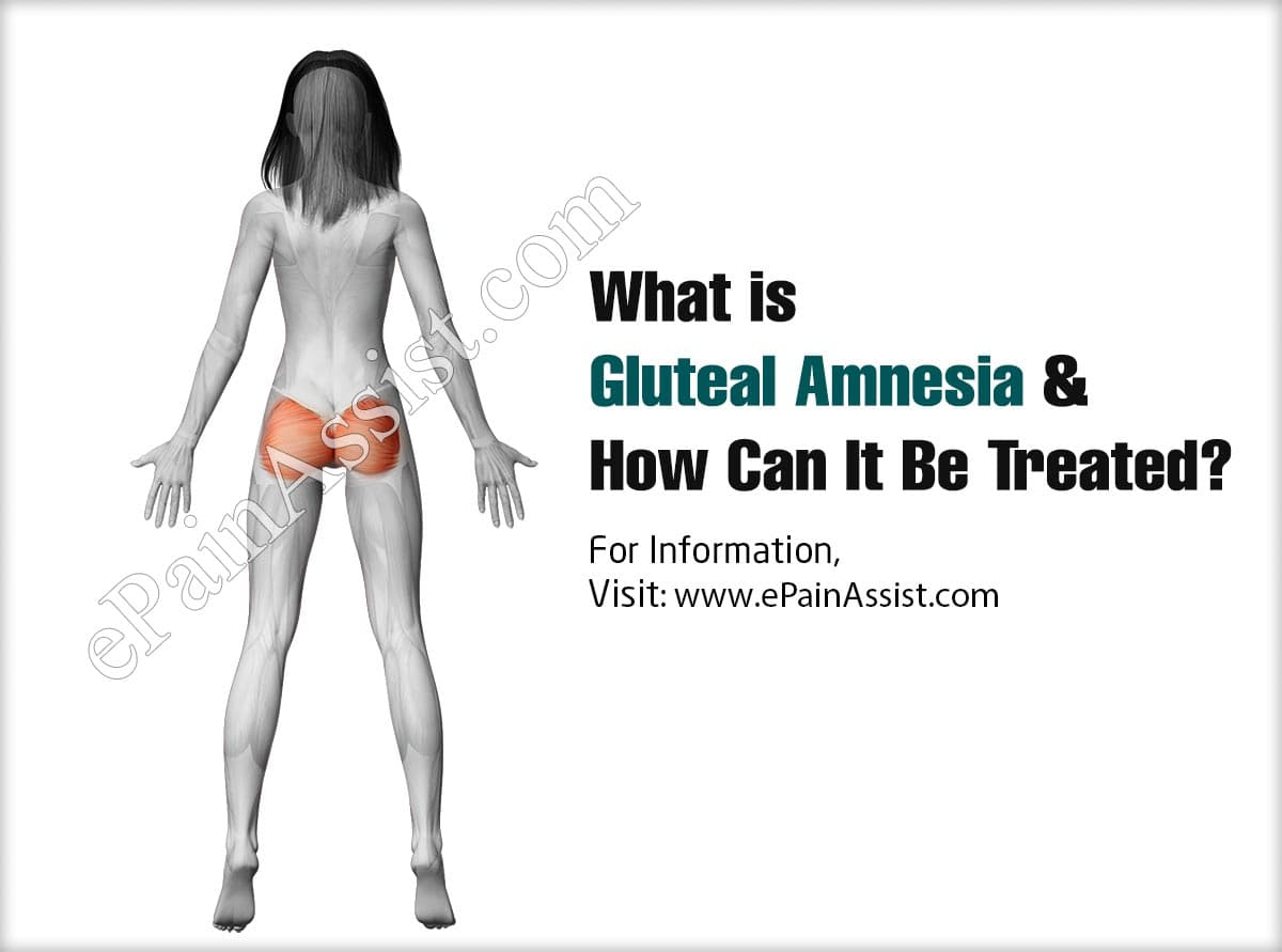 What is Gluteal Amnesia & How Can It Be Treated?