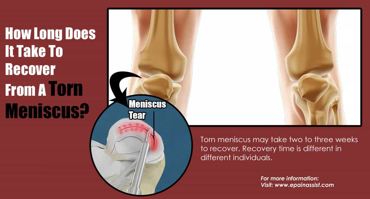 How Long Does It Take To Recover From A Torn Meniscus?