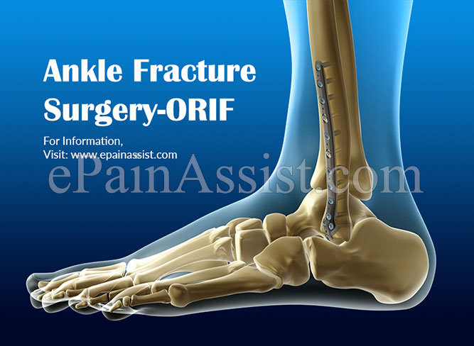 Ankle Fracture Surgery- ORIF