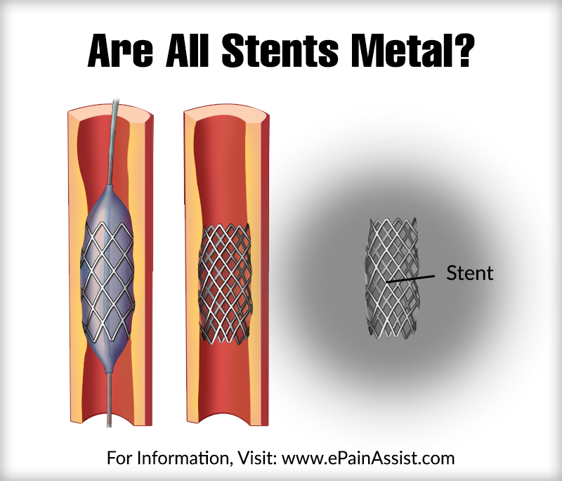 Are All Stents Metal?