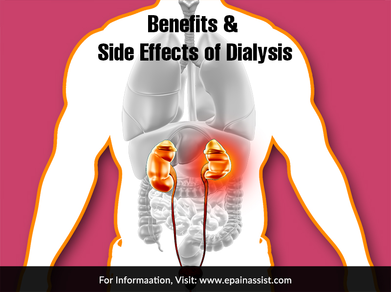 Benefits & Side Effects of Dialysis