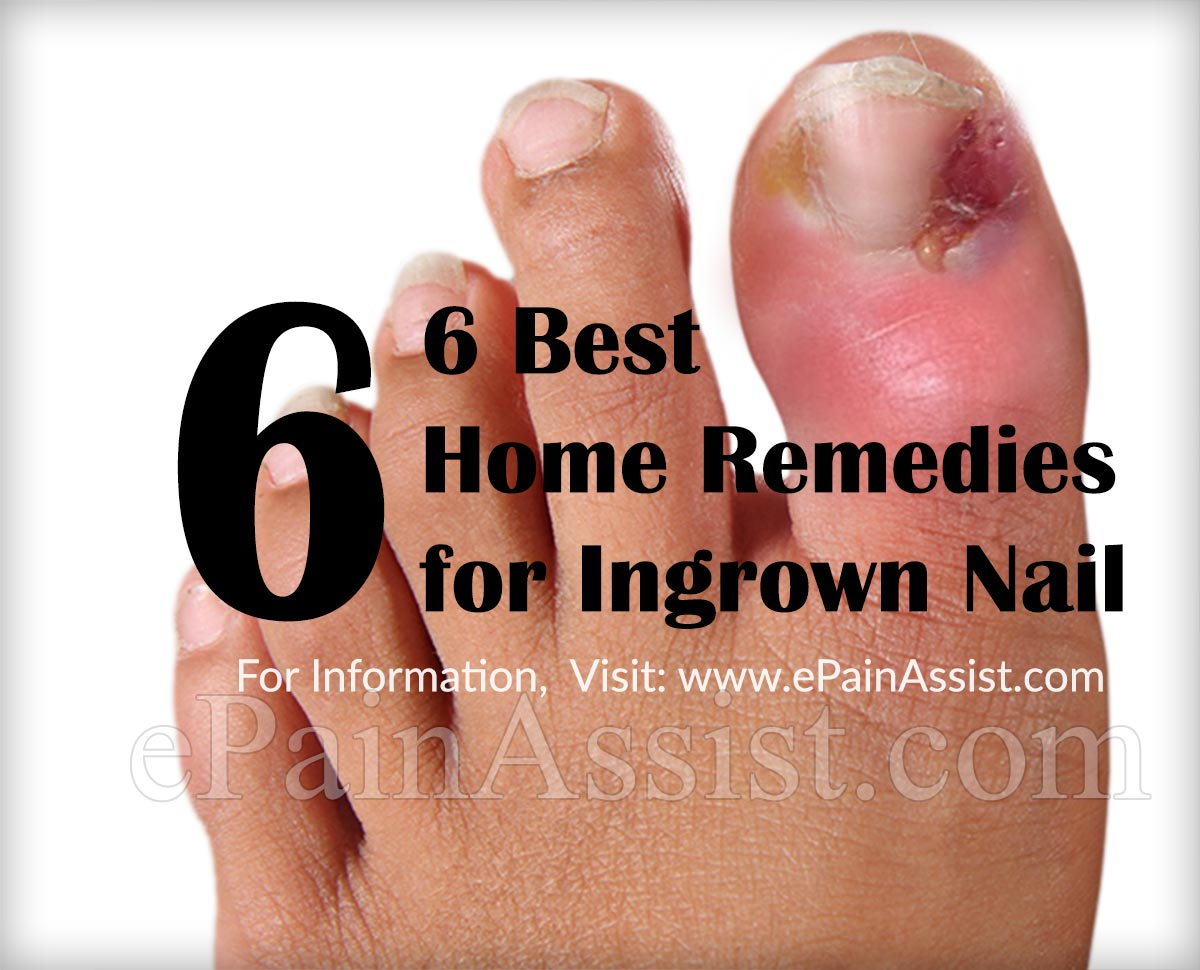 6 Best Home Remedies for Ingrown Nails or Onychocryptosis