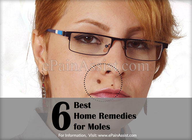 6 Best Home Remedies for Moles or Melanocytic Nevi