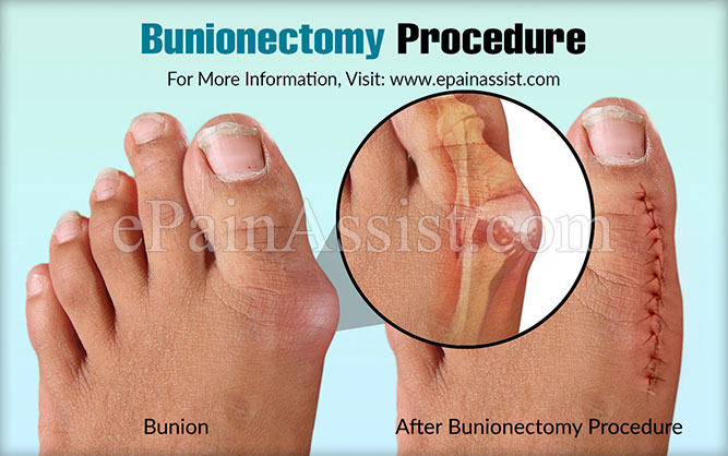 Bunionectomy Procedure
