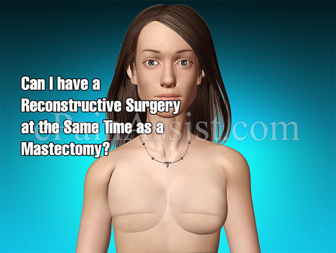 Can I have a Reconstructive Surgery at the Same Time as a Mastectomy?