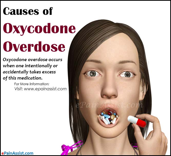 Causes of Oxycodone Overdose