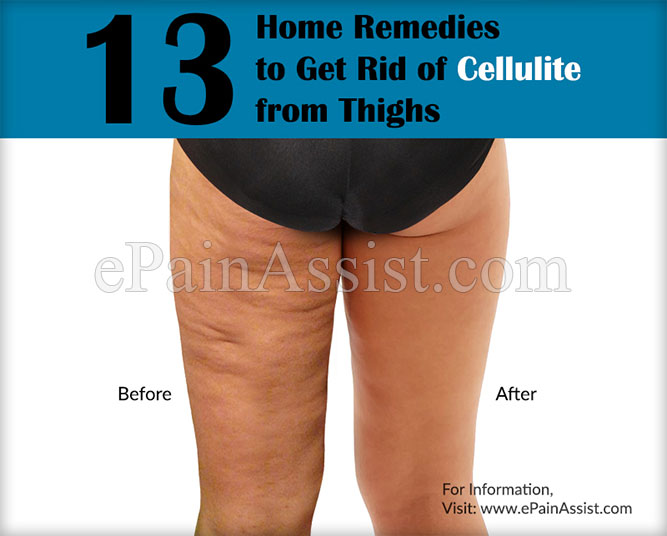 13 Home Remedies to Get Rid of Cellulite from Thighs