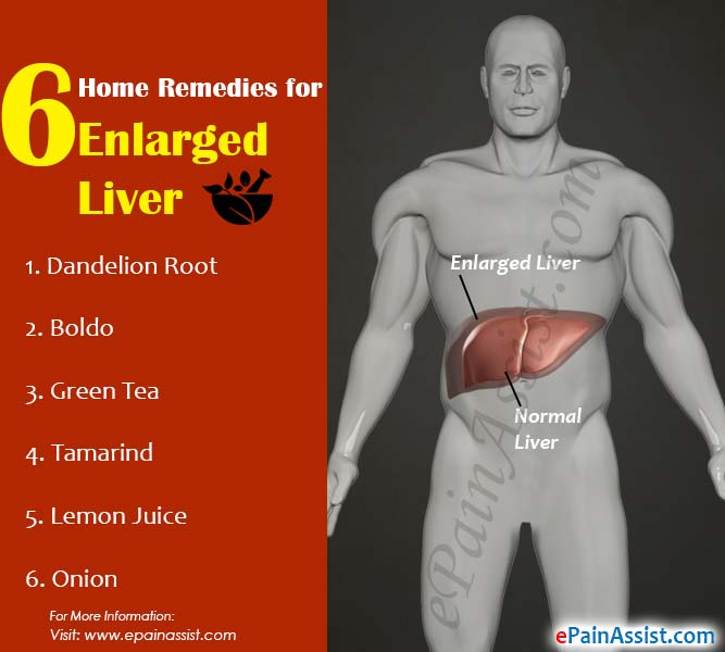 6 Home Remedies for Enlarged Liver or Hepatomegaly