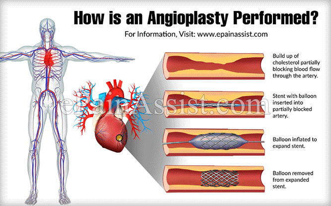 How is an Angioplasty Performed?