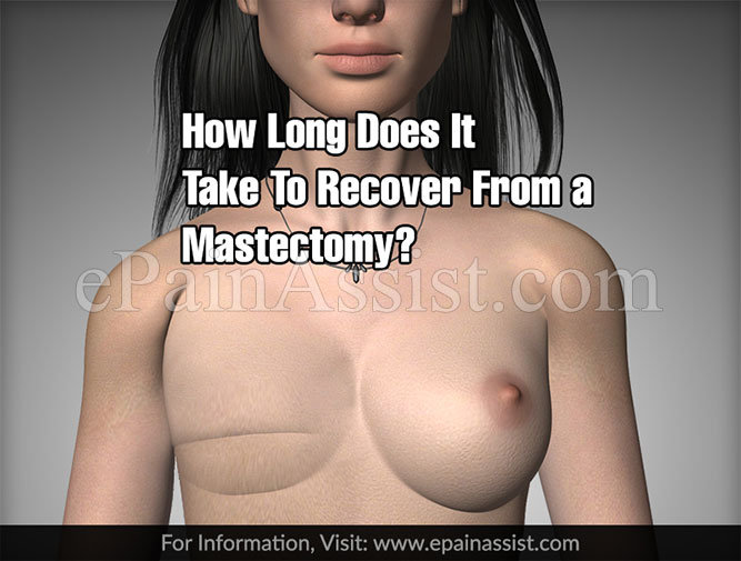 How Long Does It Take To Recover From a Mastectomy?