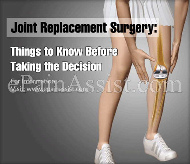 Joint Replacement Surgery: Things to Know Before Taking the Decision