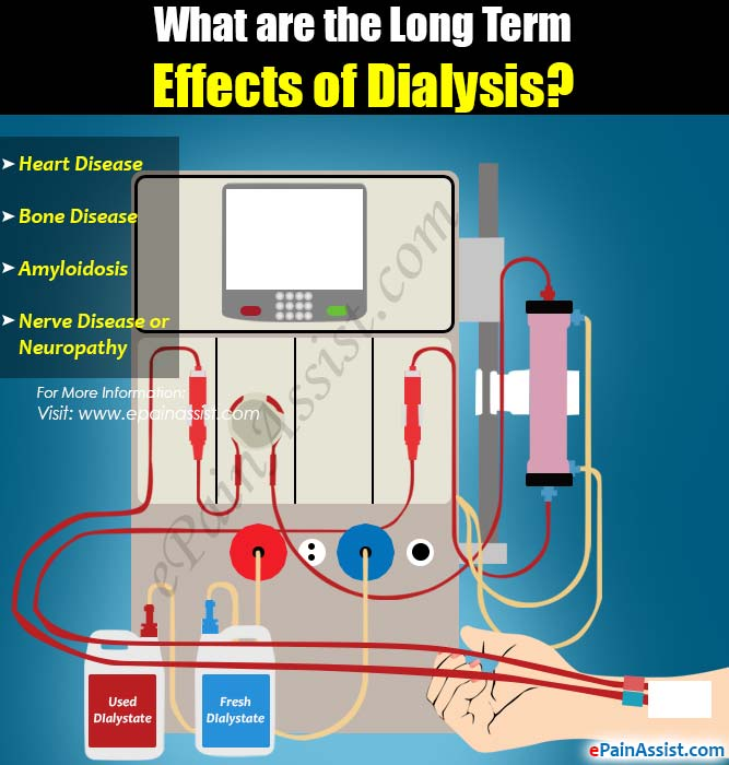 What are the Long Term Effects of Dialysis?