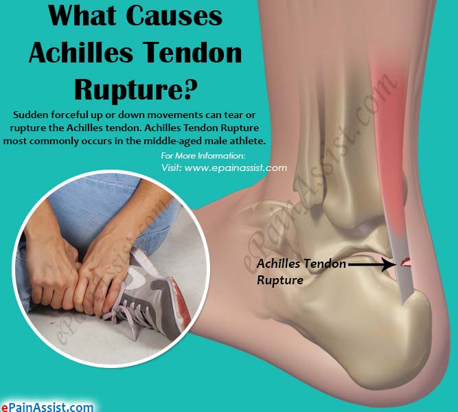 What Causes Achilles Tendon Rupture?