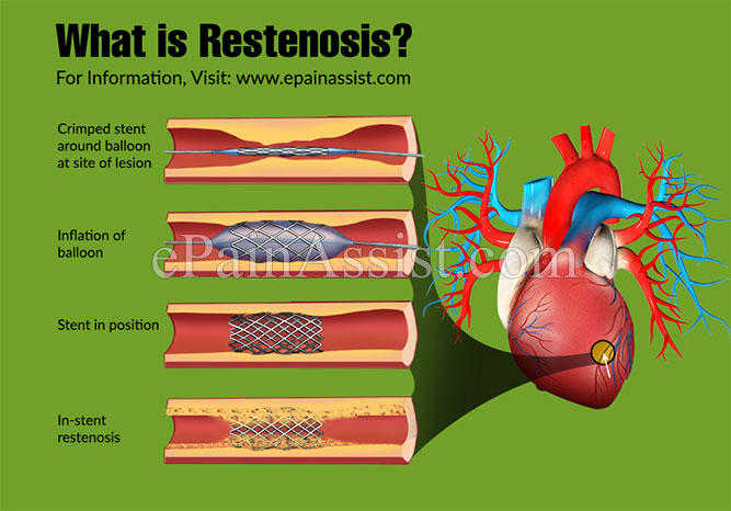 What is Restenosis?