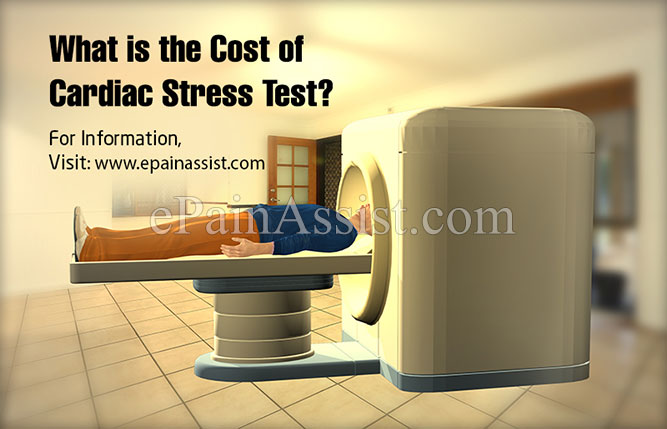 What is the Cost of Cardiac Stress Test?
