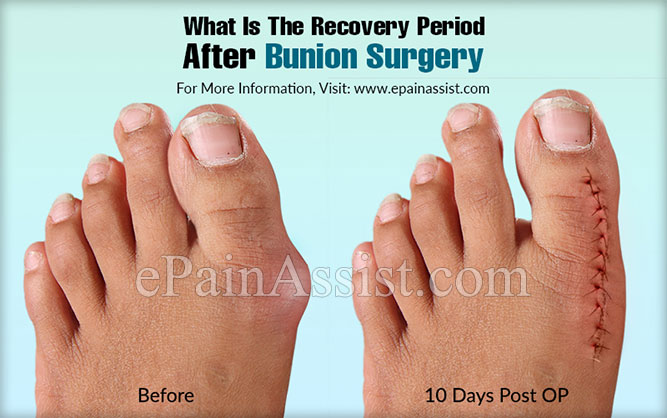 What Is The Recovery Period After Bunion Surgery?