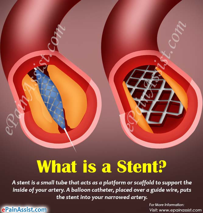 What is a Stent?
