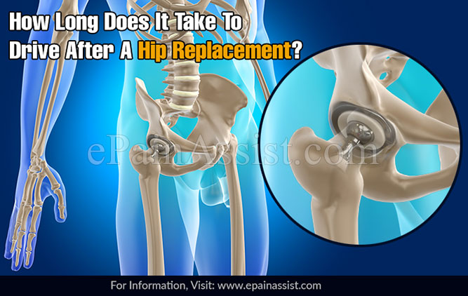 How Long Does It Take To Drive After A Hip Replacement?