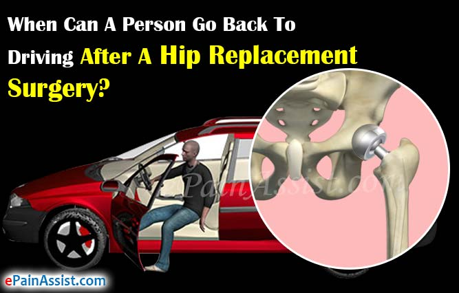 When Can A Person Go Back To Driving After A Hip Replacement Surgery?