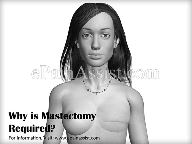 Why is Mastectomy Required?