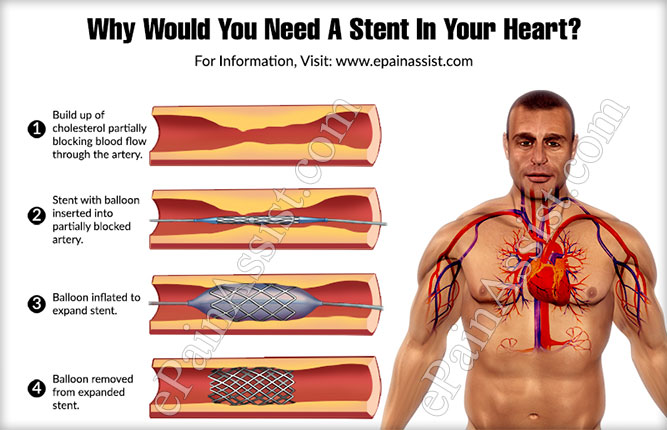 Why Would You Need A Stent In Your Heart?