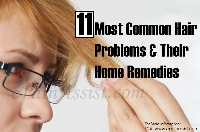 11 Most Common Hair Problems & Their Home Remedies
