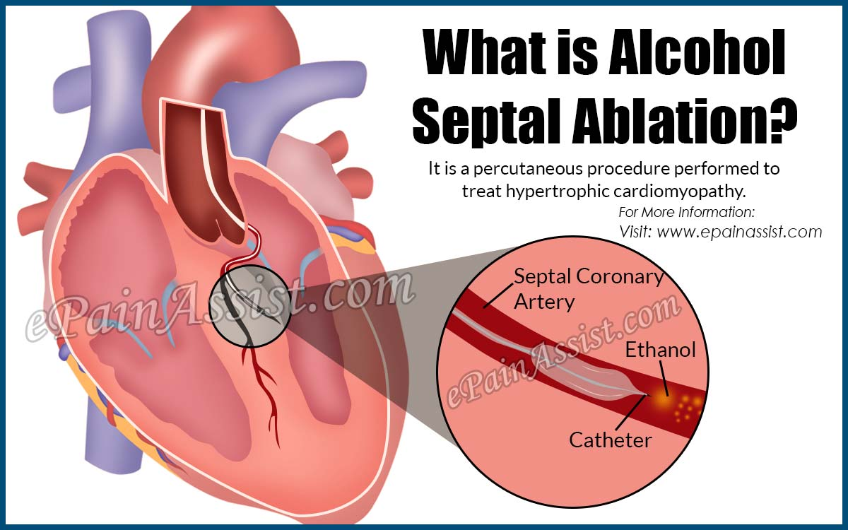What is Alcohol Septal Ablation?