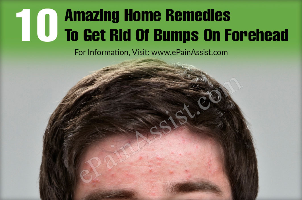 10 Amazing Home Remedies To Get Rid Of Bumps On Forehead