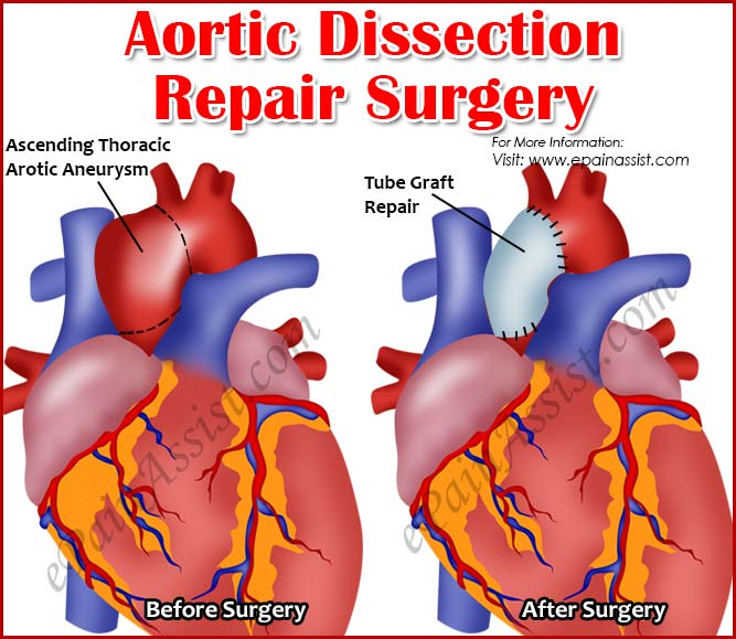 Aortic Dissection Repair Surgery