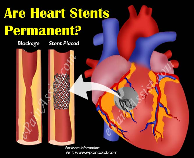 Are Heart Stents Permanent?