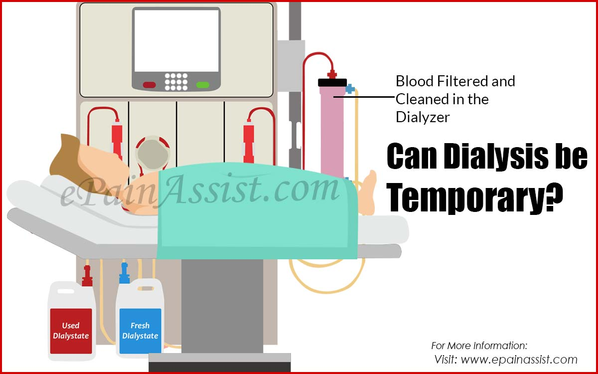 Can Dialysis be Temporary?
