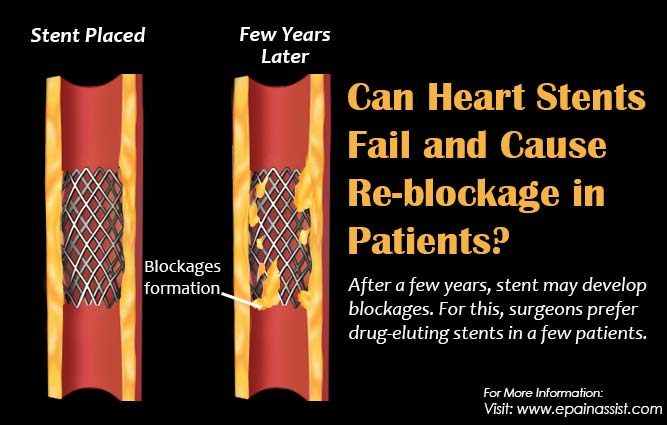 Can Heart Stents Fail and Cause Re-blockage in Patients?