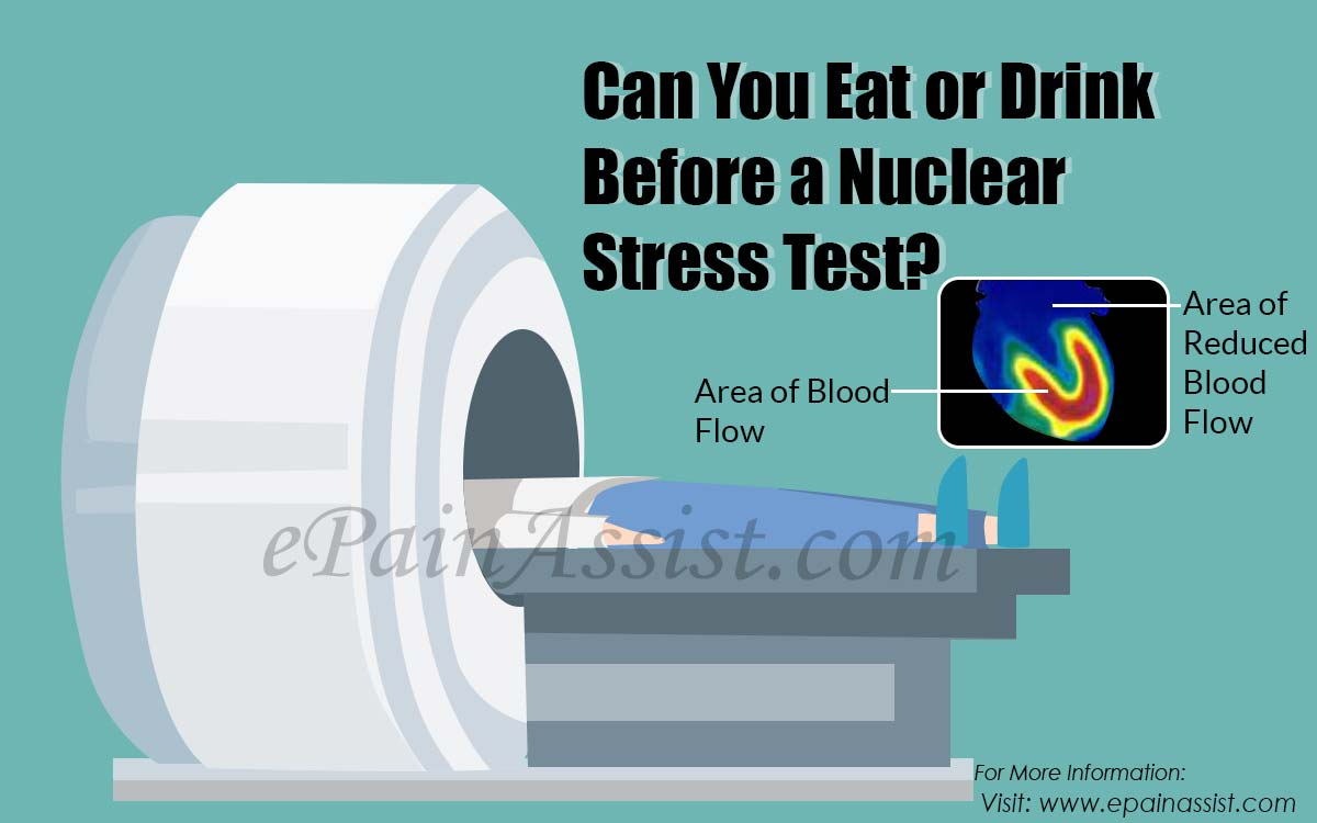 Can You Eat or Drink Before a Nuclear Stress Test?
