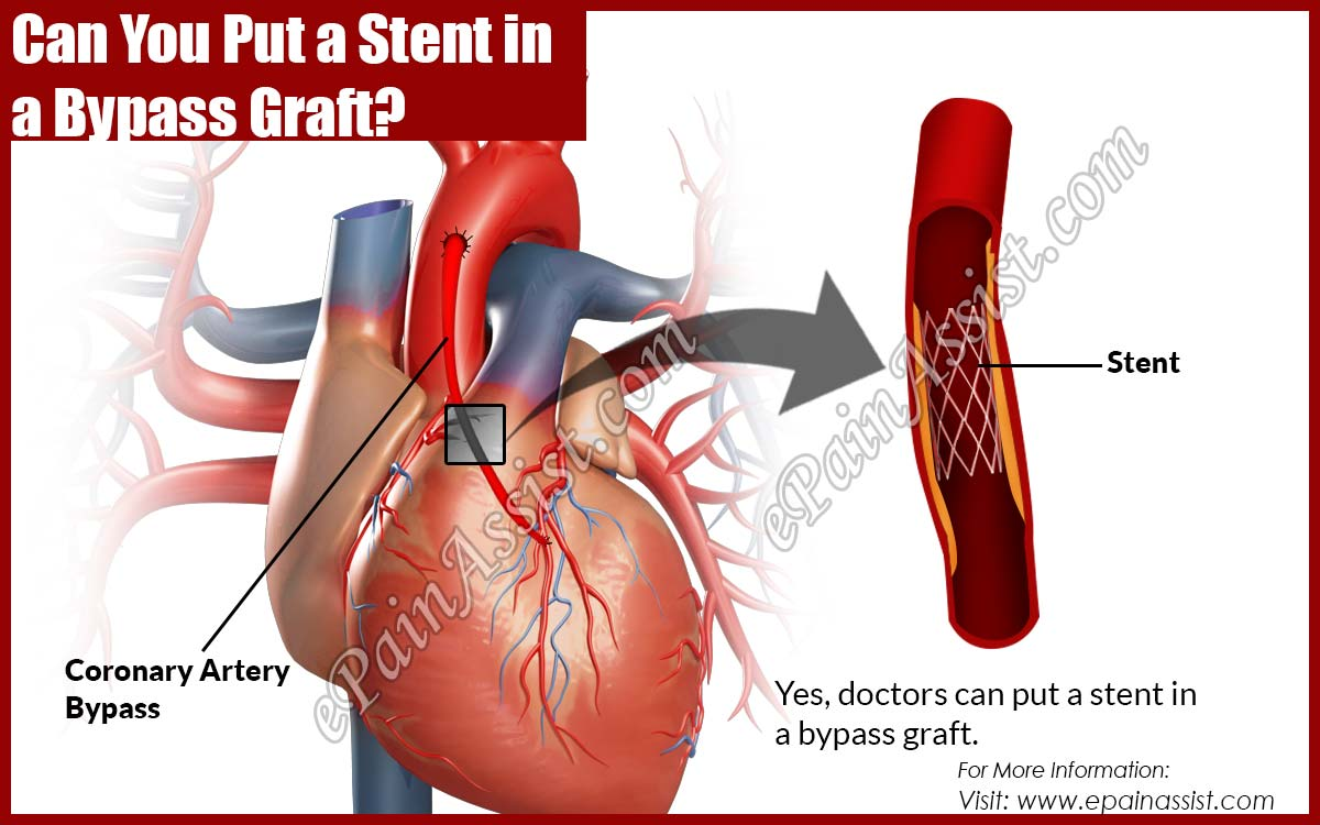 Can You Put a Stent in a Bypass Graft?