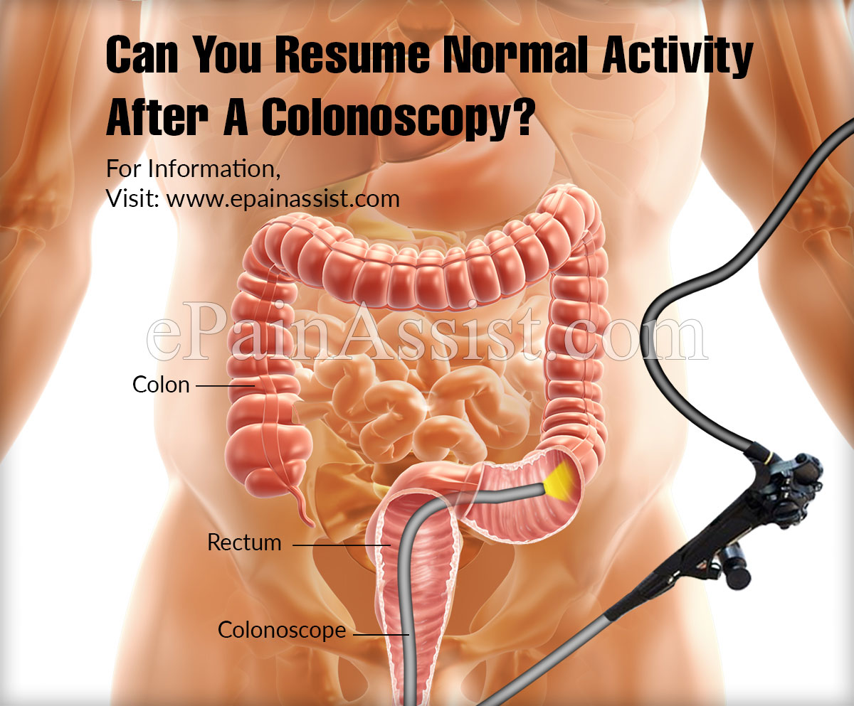 Can You Resume Normal Activity After A Colonoscopy?