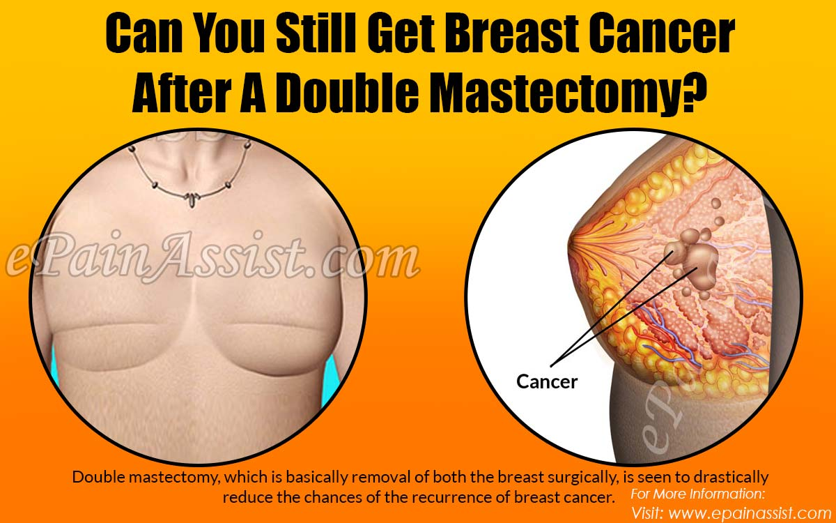 Can You Still Get Breast Cancer After A Double Mastectomy?