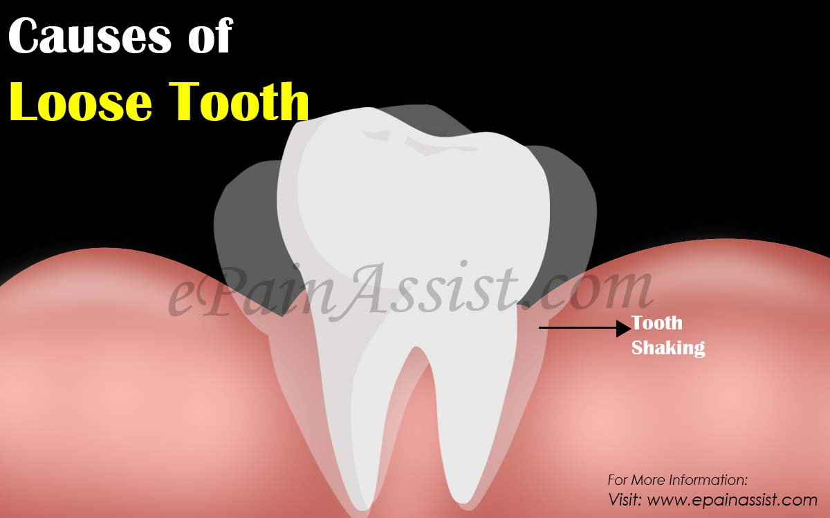 Causes of Loose Tooth