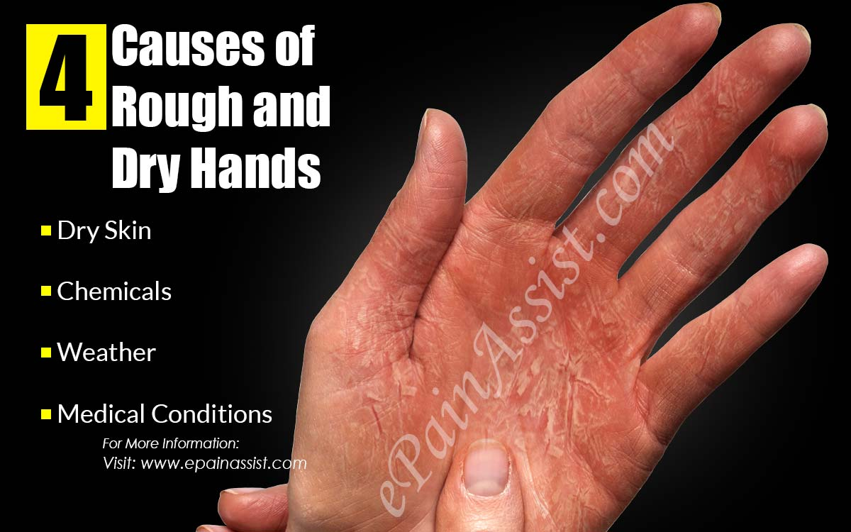 4 Causes of Rough and Dry Hands & Its 6 Home Remedies