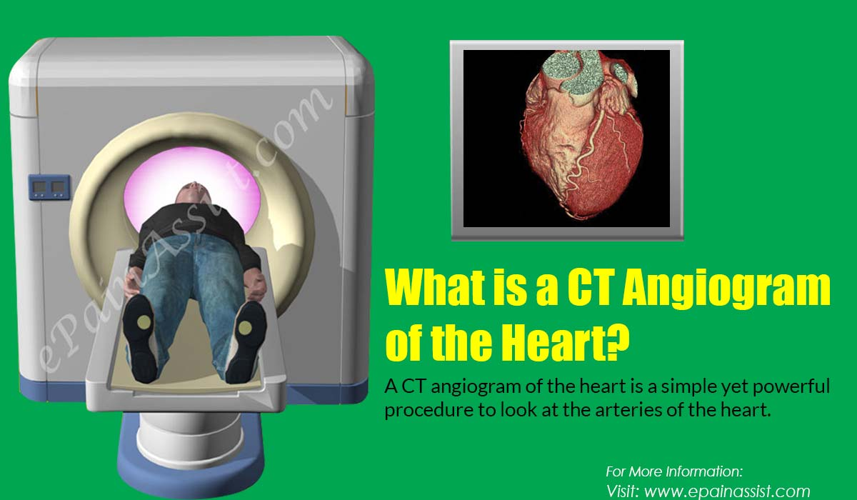 What is a CT Angiogram of the Heart?