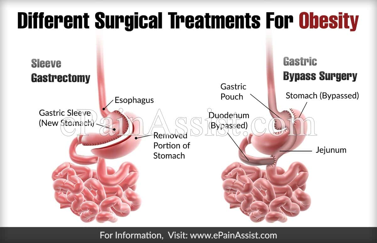 Different Surgical Treatments For Obesity