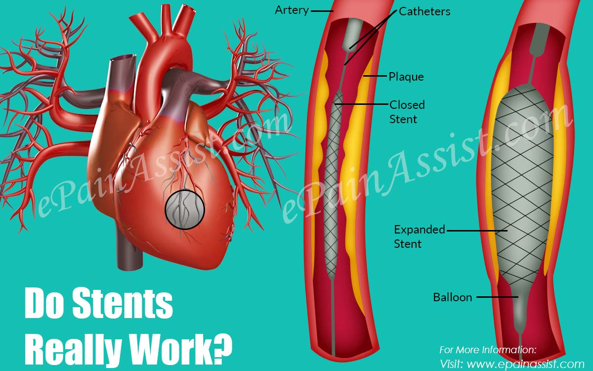 Do Stents Really Work?
