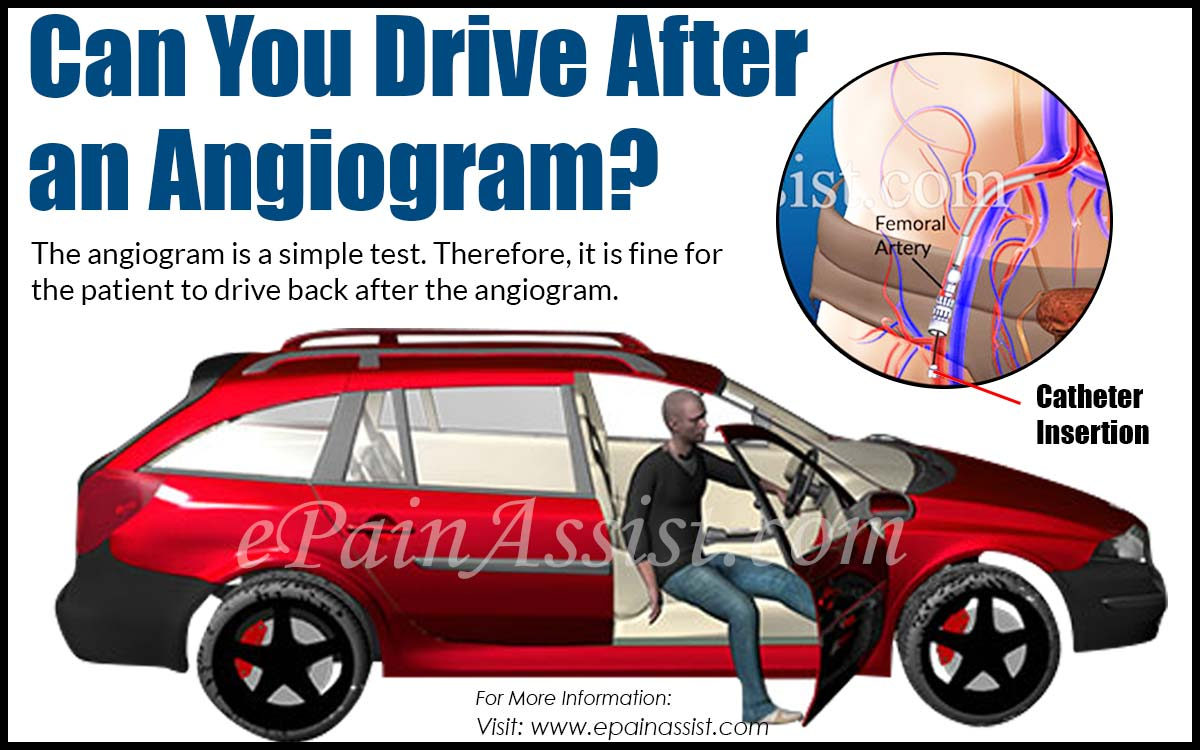 Can You Drive After an Angiogram?