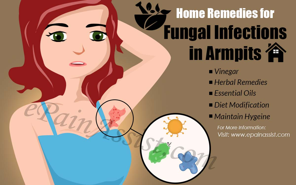 Home Remedies for Fungal Infections in Armpits
