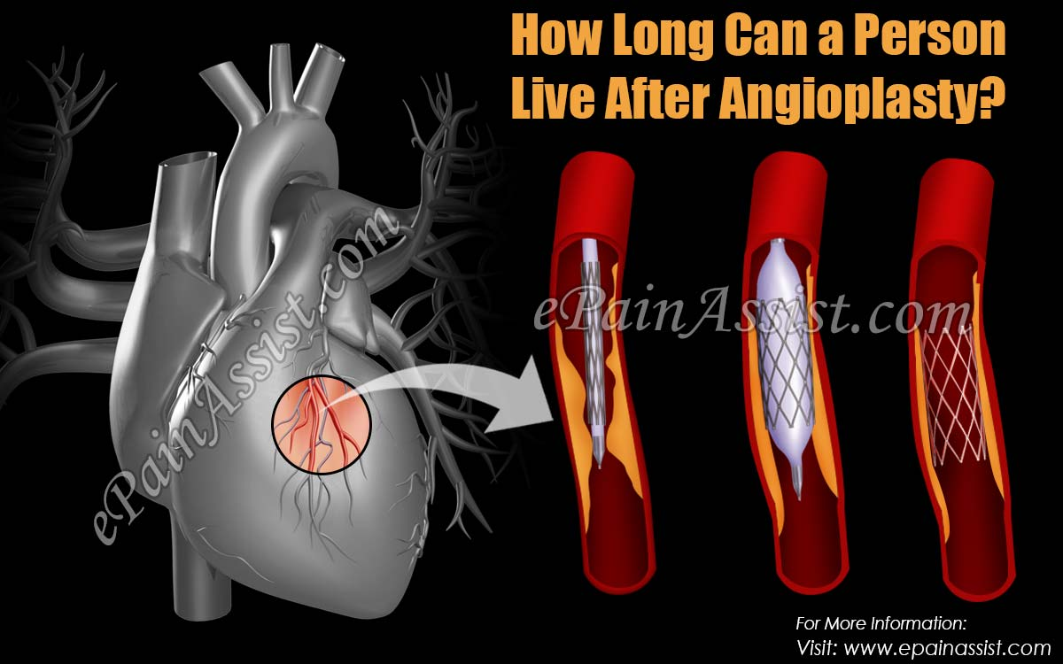 How Long Can a Person Live After Angioplasty?
