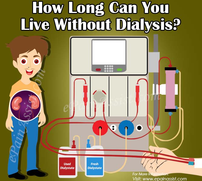 How Long Can You Live Without Dialysis?