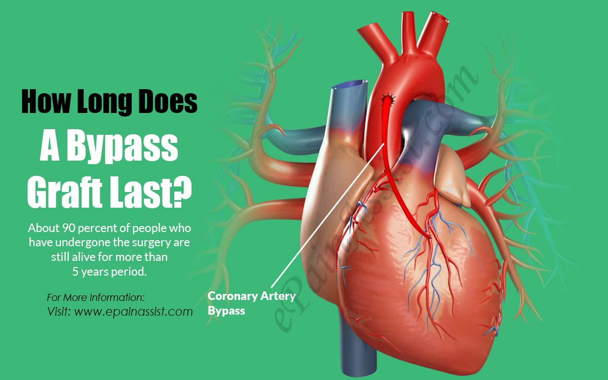 How Long Does A Bypass Graft Last?
