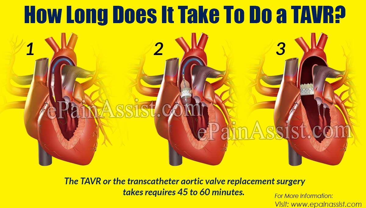 How Long Does It Take To Do a TAVR?