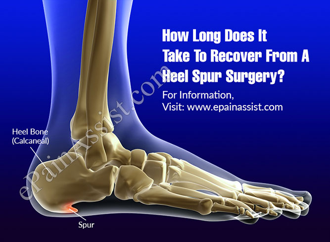 How Long Does It Take To Recover From A Heel Spur Surgery?