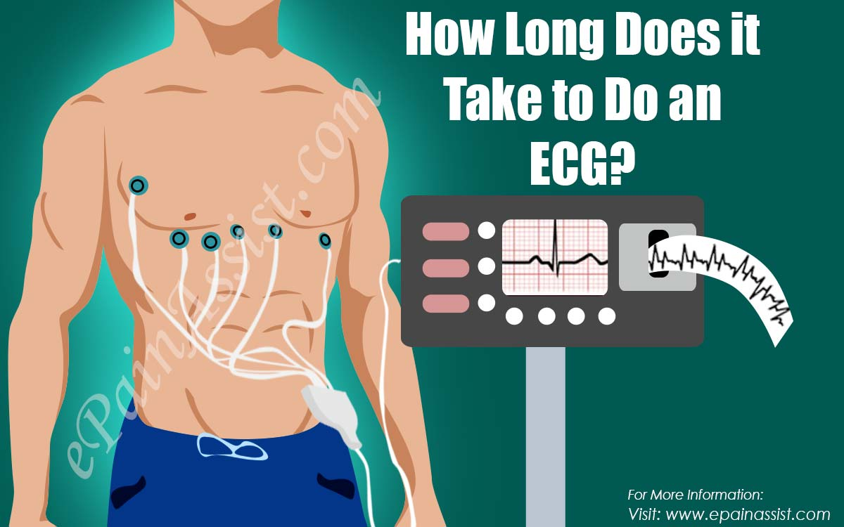 How Long Does it Take to Do an ECG?